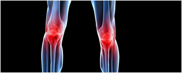 Остеоартроз коленного сустава и его лечение